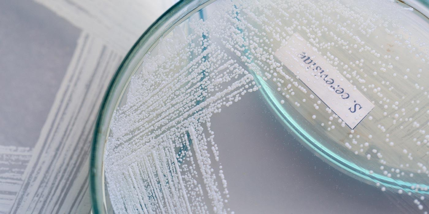 yeast petri dish label color